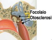 otosclerosi