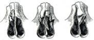 Riduzione frattura naso